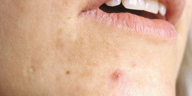 acne scabs